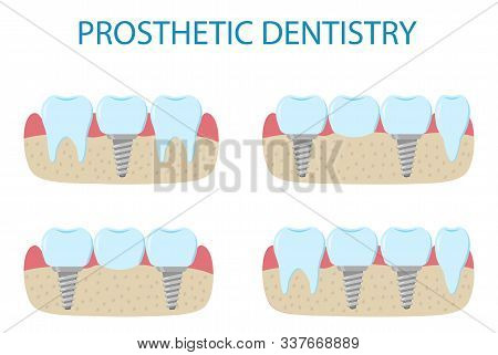 Prosthetic Dentistry Poster. Icons Of Different Variants Of Implant Prosthetics.