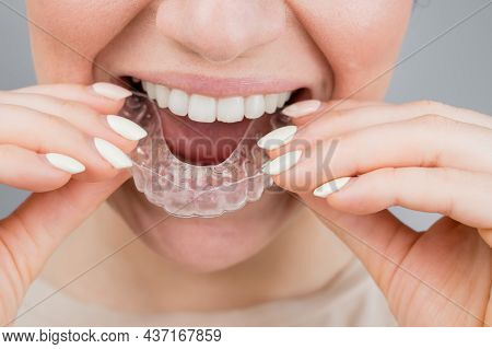 Close-up Portrait Of A Woman Putting On A Transparent Plastic Retainer. A Girl Corrects A Bite With