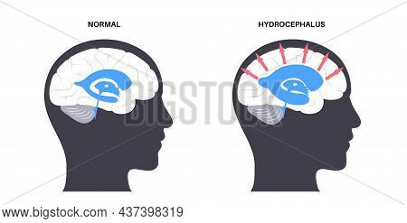 Hydrocephalus Shunt Concept. Pressure On The Brain Poster. Ventricular System Anatomy. Cerebral Vent