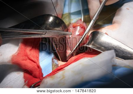Amdominal surgery details with forceps in foreground and an intestine in a background