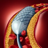 Angioplasty and stent concept as a heart disease treatment symbol with an implant in an artery that has cholesterol plaque blockage being opened for increased blood flow as a 3D illustration. poster