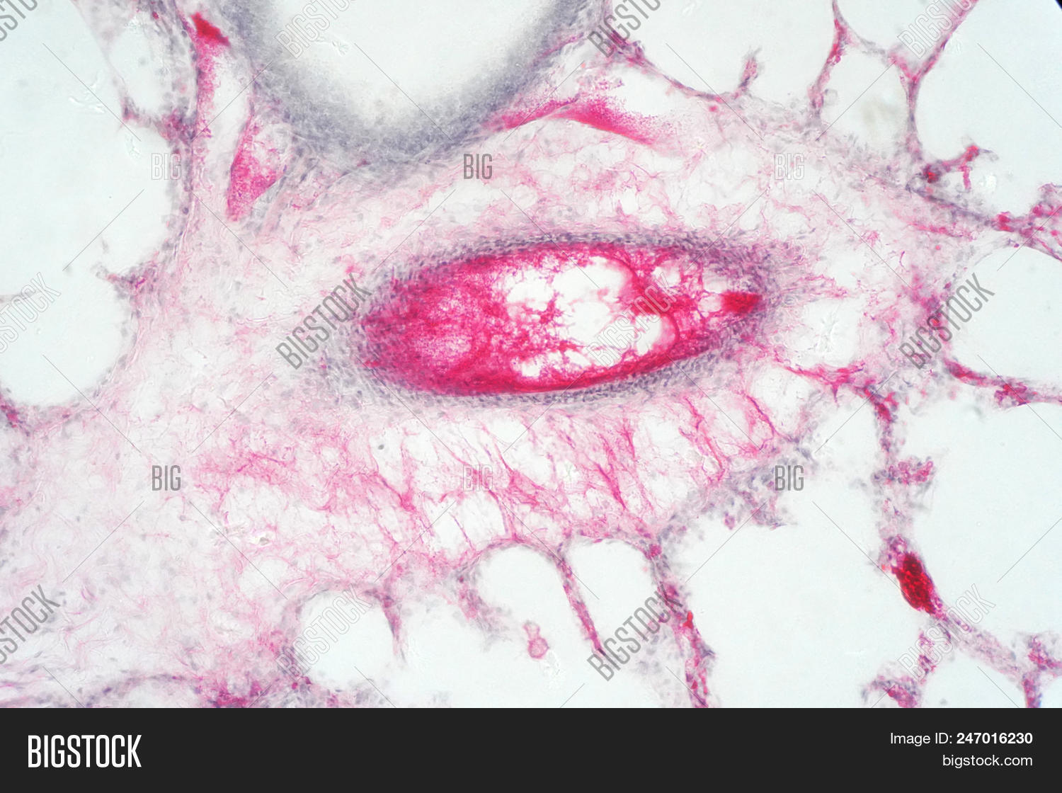 Human Lung Tissue Image Photo Free Trial Bigstock