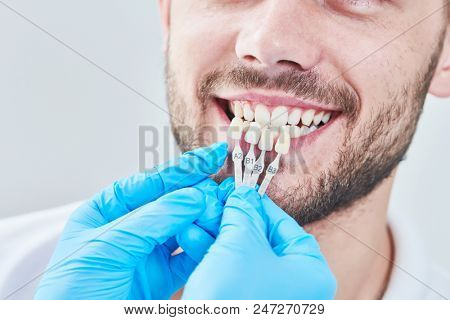 dentistry. matching colour of the tooth enamel with whitening chart