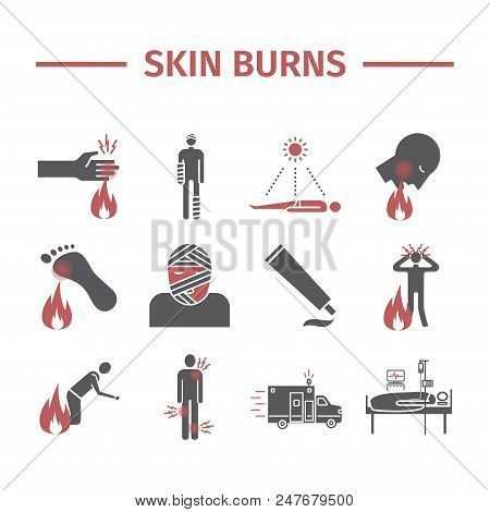 Skinl Burns kine icons. Treatment. Vector illustrations. Vector signs for web graphics poster