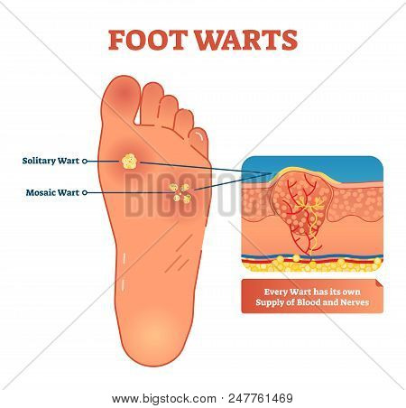 Vector Illustration Of Foot Warts. Medical Scheme With Both Types - Solitary And Mosaic Warts. Close