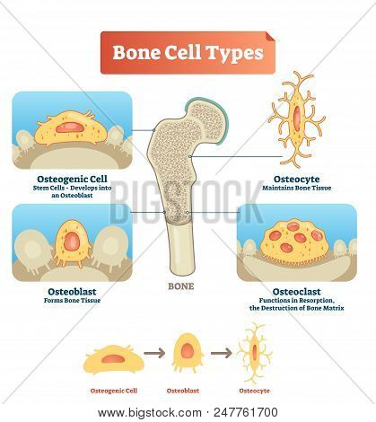Vector Illustration Of Human Bone Cell Types. Scheme Of Osteogenic Cell, Osteoblast And Osteocyte. M