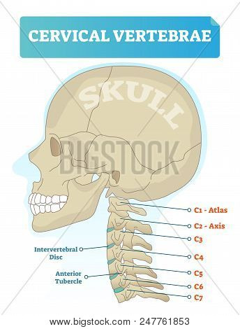 Vector Illustration Of Cervical Vertebrae. Medical Scheme With Close-up Skull And Isolated C1 Atlas,
