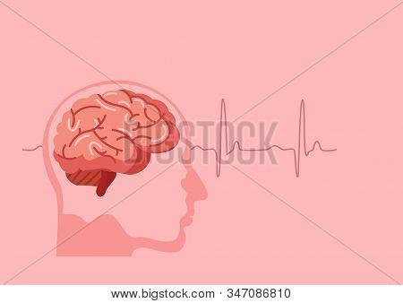 Scientific Medical Illustration Of Human Brain Stroke Illustration. Types Of Human Brain Stroke Illu