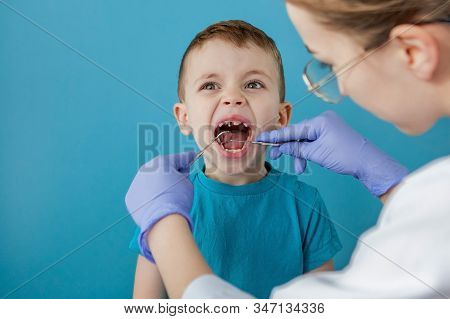 Dentist Examining Boys Teeth On Blue Background. A Small Patient In The Dental Chair Smiles. Dantist