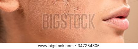 Panoramic Shot Of Young Woman With Blemished Skin Isolated On Beige