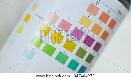 Close Up Color Level In Urine Strip Test.urine Analysis.
