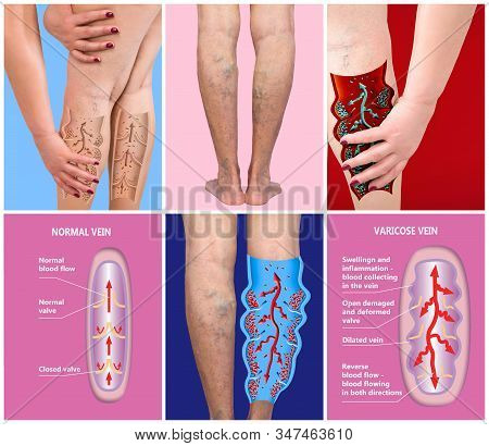 Varicose Veins On A Female Senior Legs. Concept Of Dry Skin, Old Senior People, Varicose And Deep Ve
