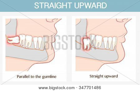 Vector Illustration Of A  Impacted Wisdom Tooth