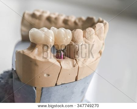 Dental Prosthetics On Implants, Artificial Jaw With Dentures On The Table In The Dental Office