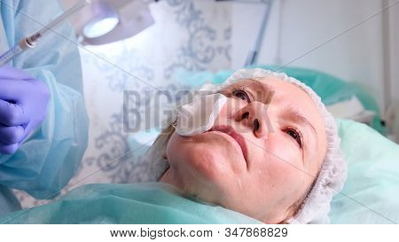 Cosmetologist Doctor Prepares A Womans Face For A Cosmetic Injection, Injections Of Hyaluronic Acid.