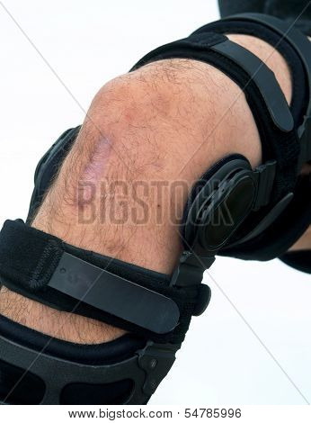 Knee Brace.