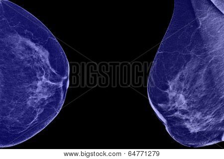 Lateral mammogram of female breast.