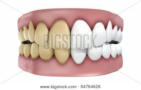 Teeth Set Isolated