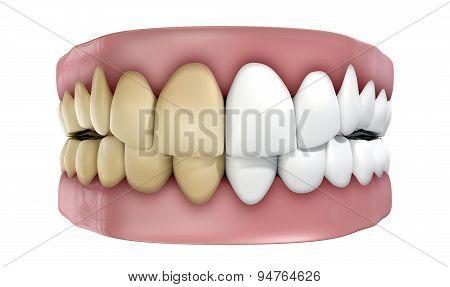 Teeth Set Isolated