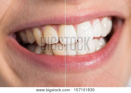 Close-up Detail Of Person Teeth Showing Before And After Whitening