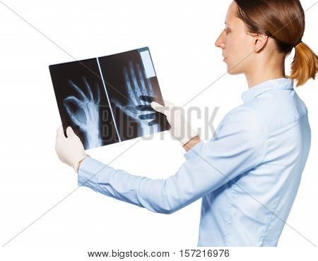 Over shoulder view of doctor looking at patient's hand and fingers xray