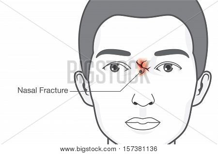 Nasal fracture on facial of man. Contusion from accident and other. Illustration about medical.