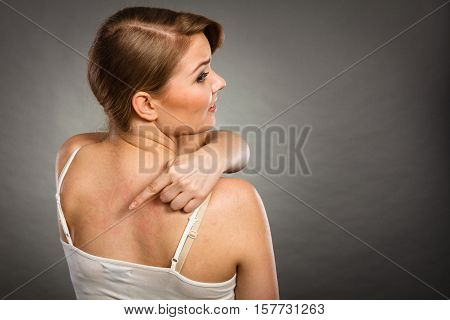 Health problem skin diseases. Young woman showing her itchy back with allergy rash urticaria symptoms