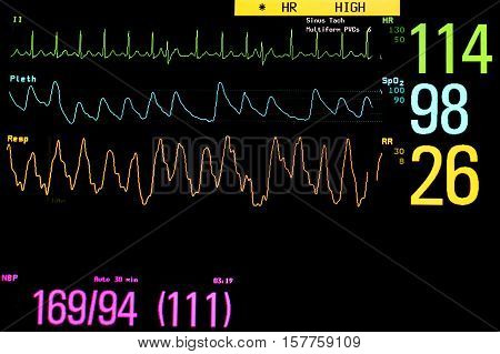 Vital signs monitoring in the ICU unit.