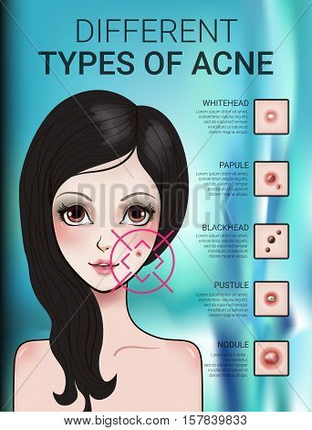Infographics of different type of acne. Vector Illustration with skin problems.