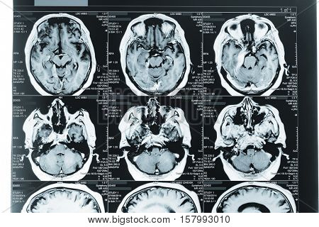 MRI Head Scan. Blue toned Image