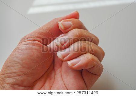 Nail Tear, Tear Nails Cause Pain At Fingertips. The Nail At The Index Finger Tear.