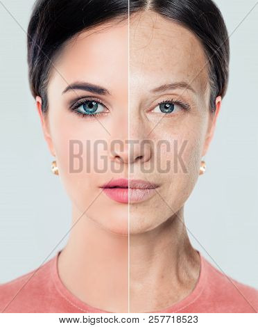 Aging And Youth Concept. Beautiful Woman With Problem And Clean Skin, Beauty Treatment And Lifting.