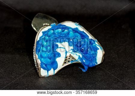 Silicone Tooth Print For The Manufacture Of A Blue Tooth Pin And Tooth Crown. Restoration Of A Man's