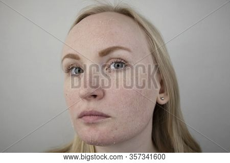 A Woman Examines Dry Skin On Her Face. Peeling, Coarsening, Discomfort, Skin Sensitivity. Patient At