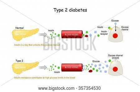Types 2 Of Diabetes Mellitus. Comparison Of Cell Work In Diabetes And In A Healthy Body. Insulin Res