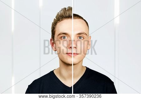 Portrait Of Young Man Before Arter Haircut With Hair Loss: Bald And Pompadour, Transplant And Transf