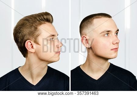 Man Before Arter Haircut With Hair Loss: Bald And Pompadour, Transplant And Transformation In Profil