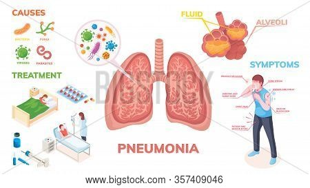 Pneumonia Lungs Disease Vector Infographics On Symptoms, Cause And Medical Treatment. Pneumonia Lung