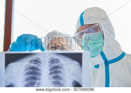 Medical doctor with X-ray image of the lungs of a Covid-19 patient in the intensive care unit
