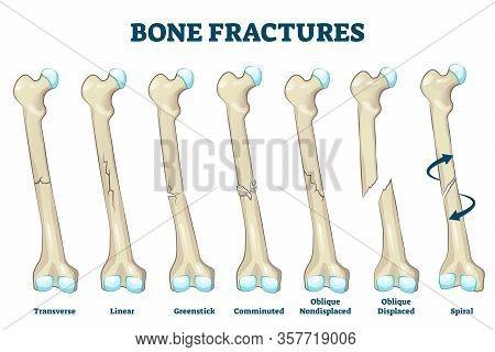Bone Fractures Vector Illustration. Educational Labeled Broken Leg, Arm Scheme. Various Damaged Inju