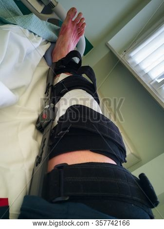 Human Leg With Patches And Orthopedic Brace After Anterior Cruciate Ligament Surgery: In Bed At Hosp