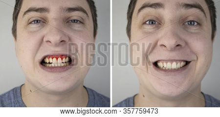 A Man Has Gum Bleeding. Photos Before And After Treatment Of Periodontitis, Gingivitis And Bleeding
