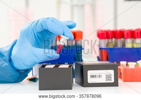 Coronavirus (COVID-19) IgM/IgG Rapid Test Kit. covid-19  IGM / IGG antibody diagnostic test in microbiological lab