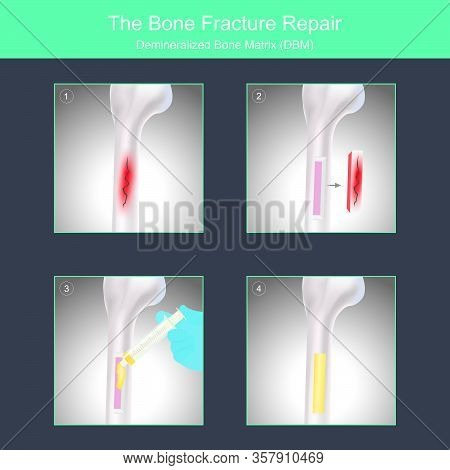 The Bone Fracture Repair. Example Use Of Specialised Materials For Bone Fracture Repair Surgery..