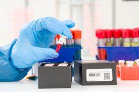 Coronavirus (COVID-19) IgM/IgG Rapid Test Kit. covid-19  IGM / IGG antibody diagnostic test in microbiological lab