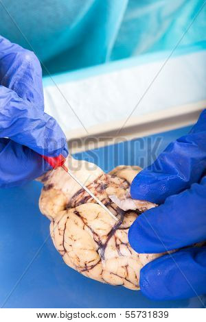 Physiology Student Examining A Brain Of A Cow