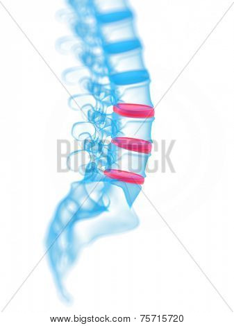 3d rendered, medical illustration of a painful spine