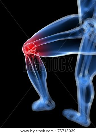 3d rendered, medical illustration of a painful knee