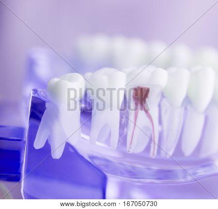 Dental Tooth Root Model