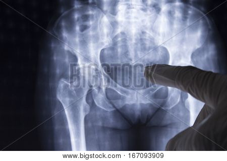 Women hips on Xray. Finger pointing xray